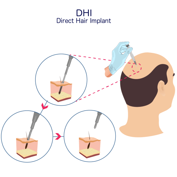 DHI Hair Transplant Procedure