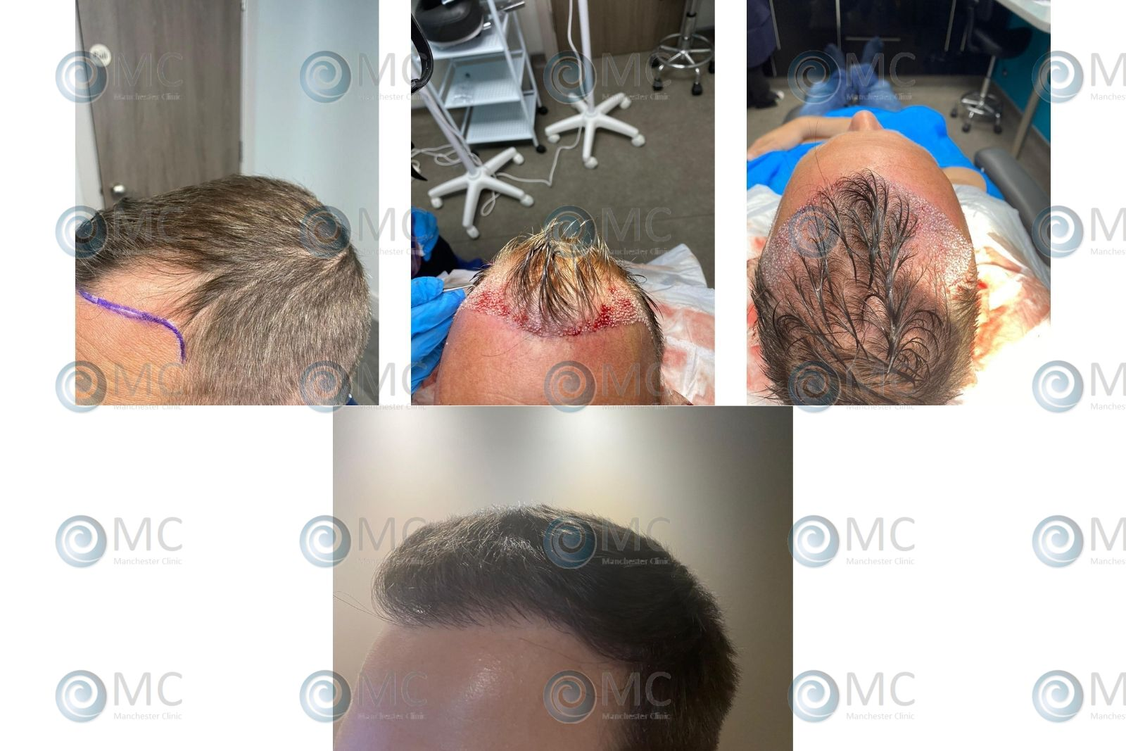 FUE Hair Transplant Product picture for Manchester Hair Transplant Clinic