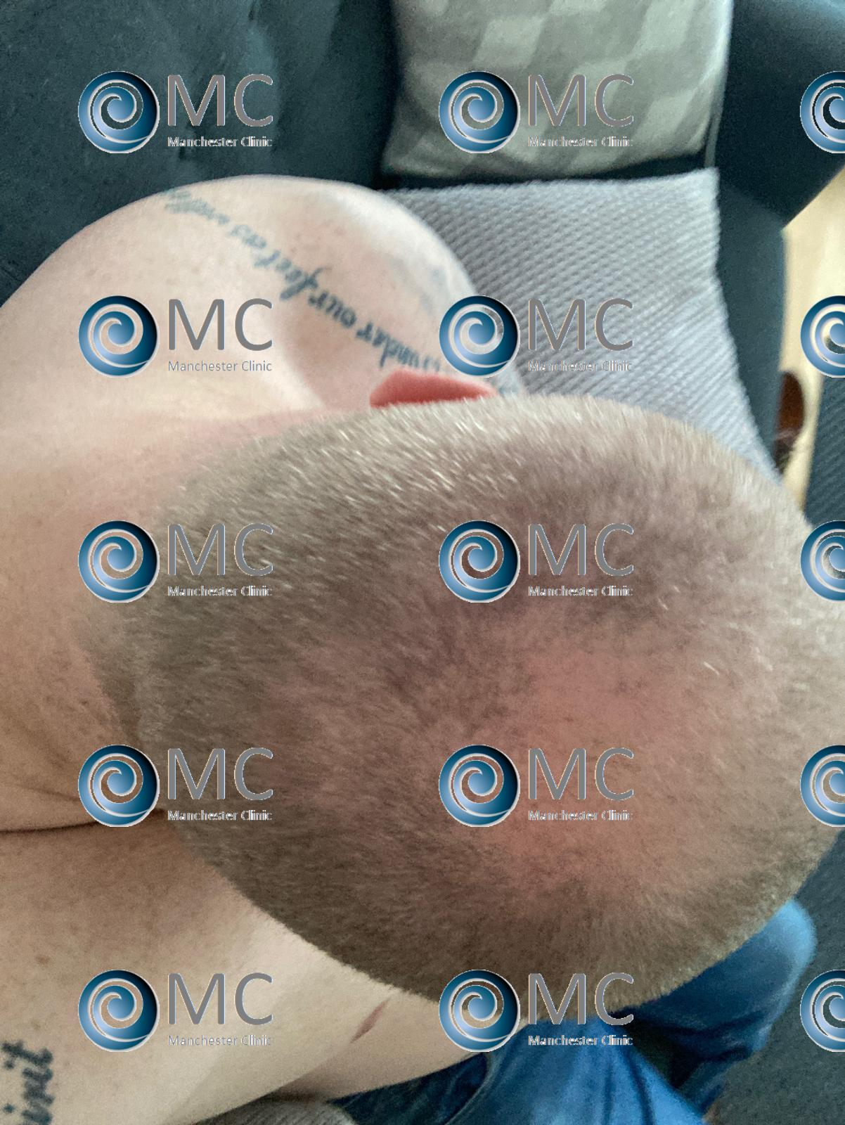 Harley Street Client before top of the head - MC